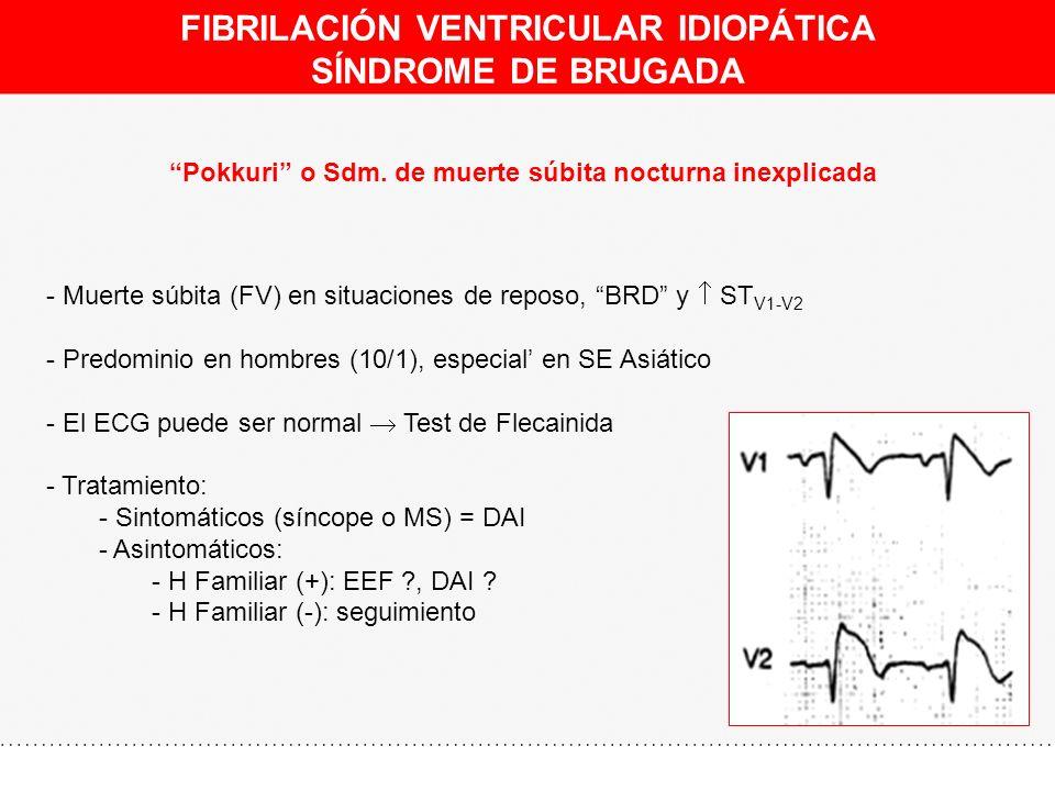 FIBRILACIÓN VENTRICULAR IDIOPÁTICA SÍNDROME DE BRUGADA