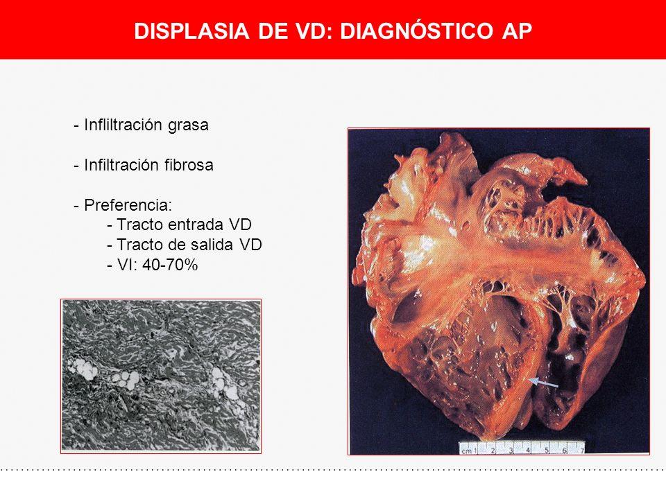 DISPLASIA DE VD: DIAGNÓSTICO AP