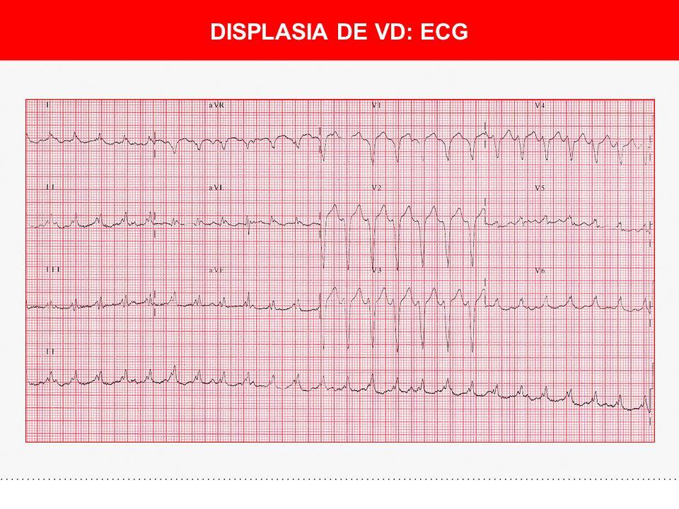 DISPLASIA DE VD: ECG