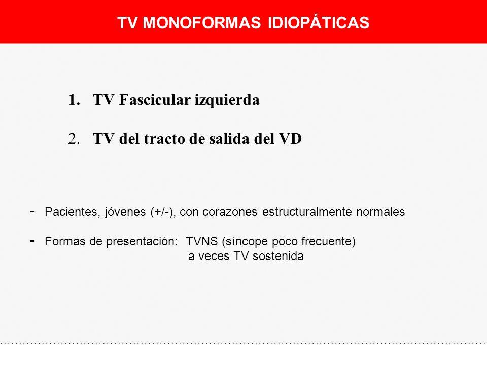 TV MONOFORMAS IDIOPÁTICAS