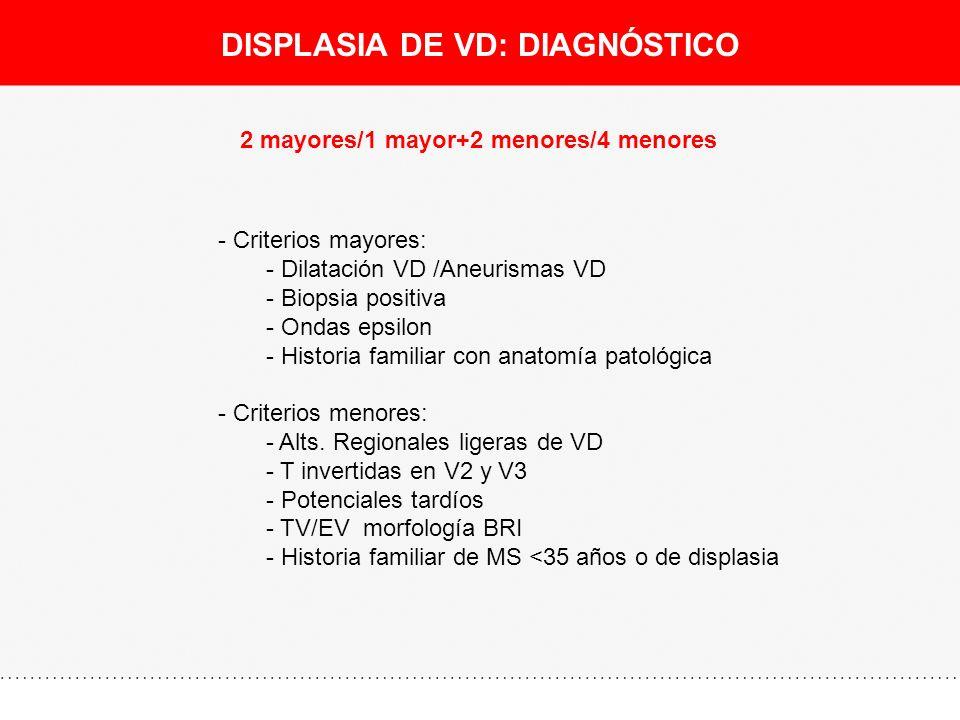 DISPLASIA DE VD: DIAGNÓSTICO