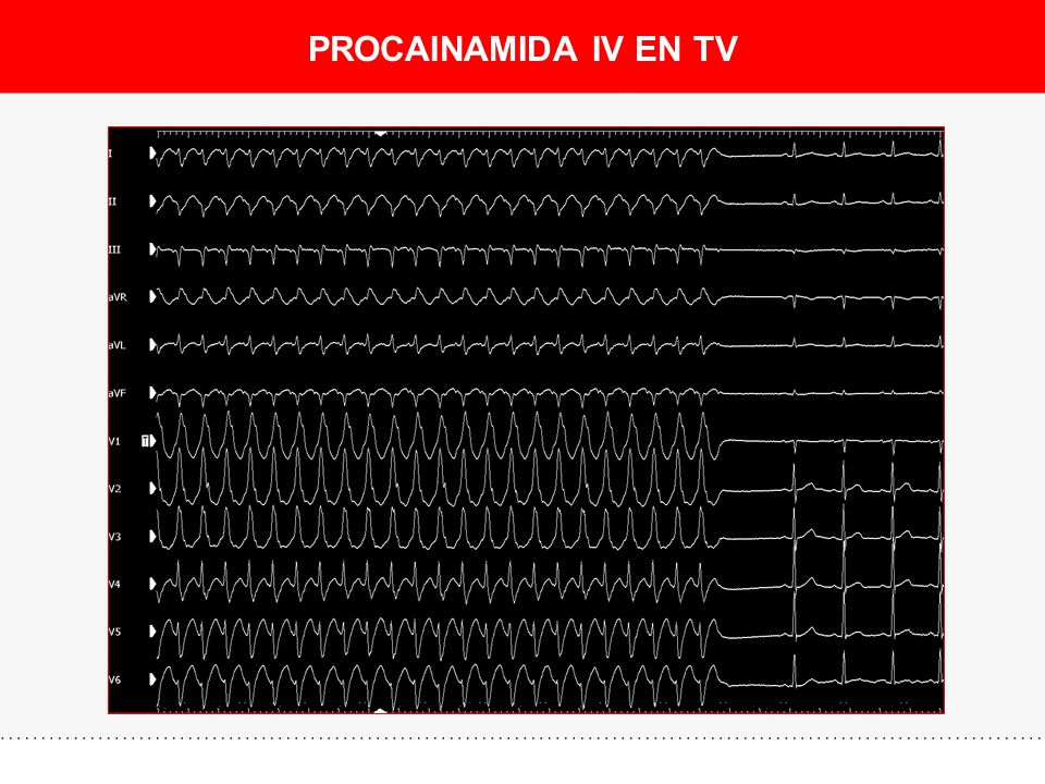 PROCAINAMIDA IV EN TV