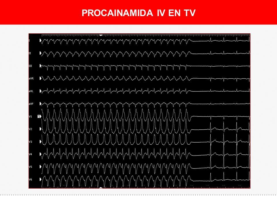 PROCAINAMIDA IV EN TV