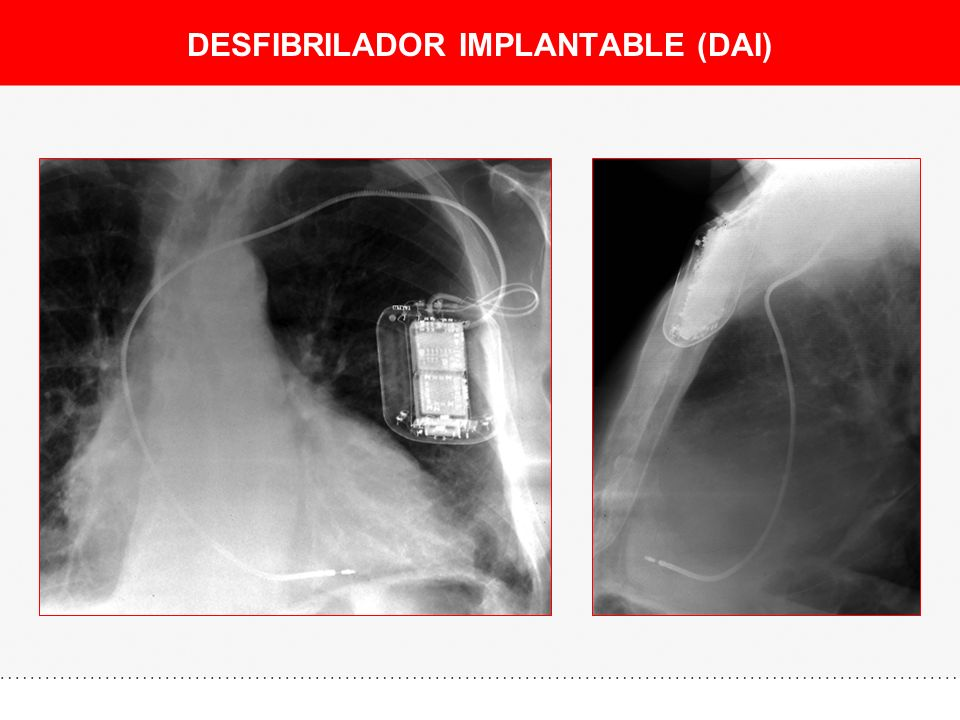 DESFIBRILADOR IMPLANTABLE (DAI)