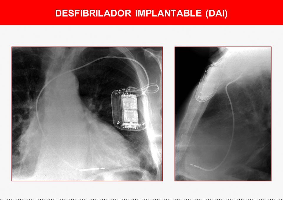 DESFIBRILADOR IMPLANTABLE (DAI)