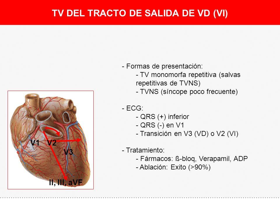 TV DEL TRACTO DE SALIDA DE VD (VI)
