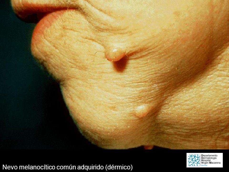Nevo melanocítico común adquirido (dérmico)