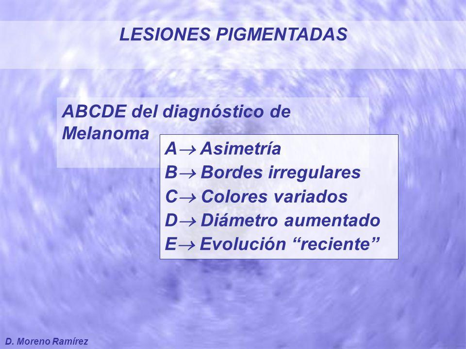 ABCDE del diagnóstico de Melanoma