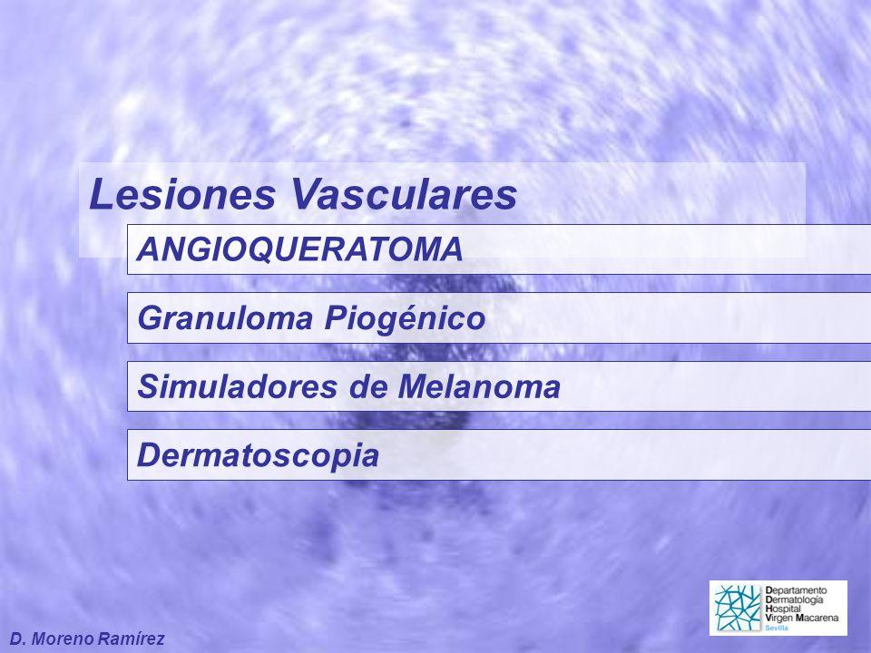 Lesiones Vasculares ANGIOQUERATOMA Granuloma Piogénico