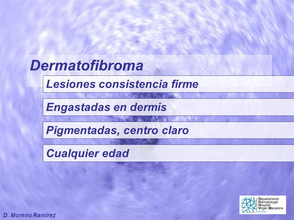 Dermatofibroma Lesiones consistencia firme Engastadas en dermis