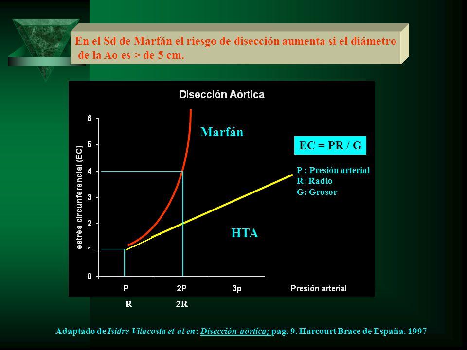 En el Sd de Marfán el riesgo de disección aumenta si el diámetro