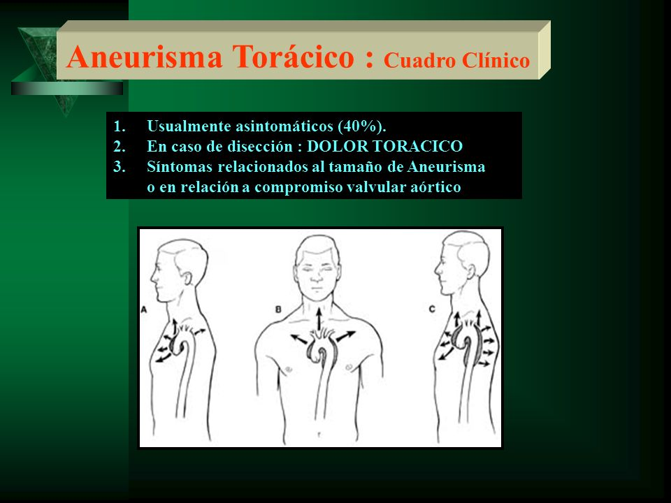 Aneurisma Torácico : Cuadro Clínico