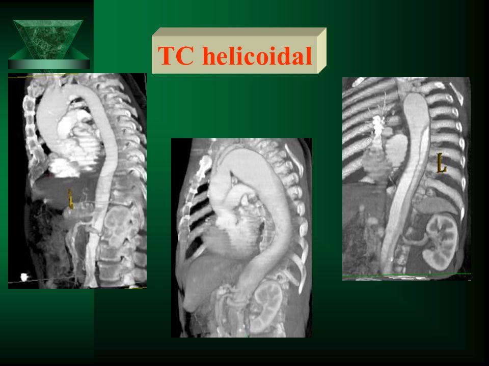 TC helicoidal