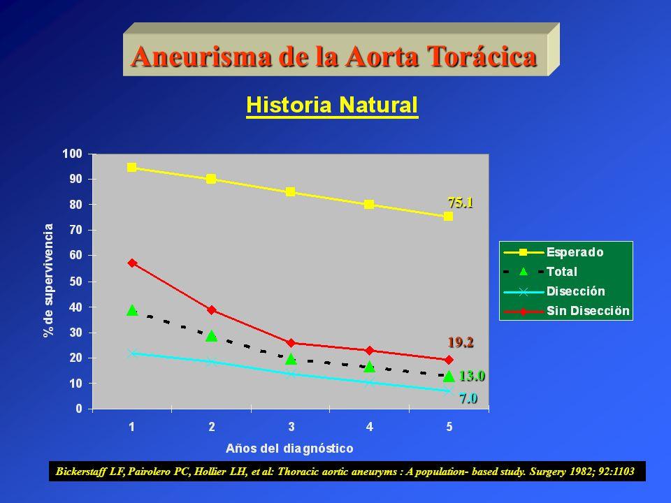 Aneurisma de la Aorta Torácica