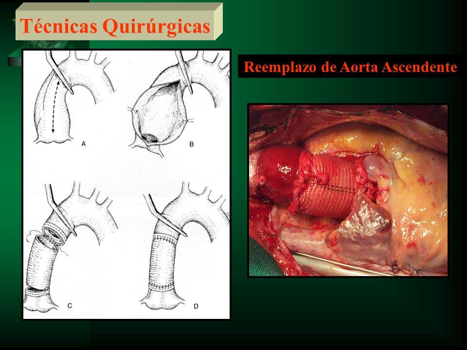 Reemplazo de Aorta Ascendente