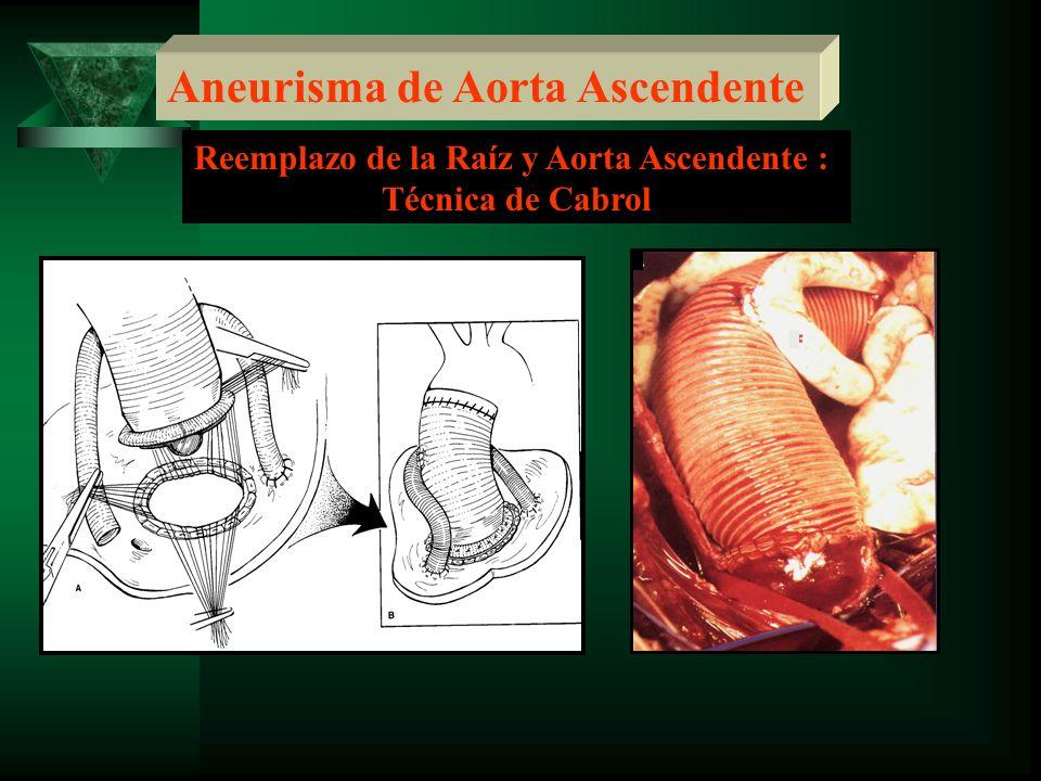 Reemplazo de la Raíz y Aorta Ascendente :