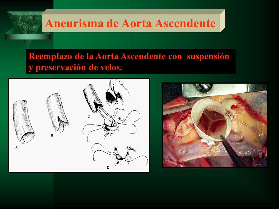 Aneurisma de Aorta Ascendente