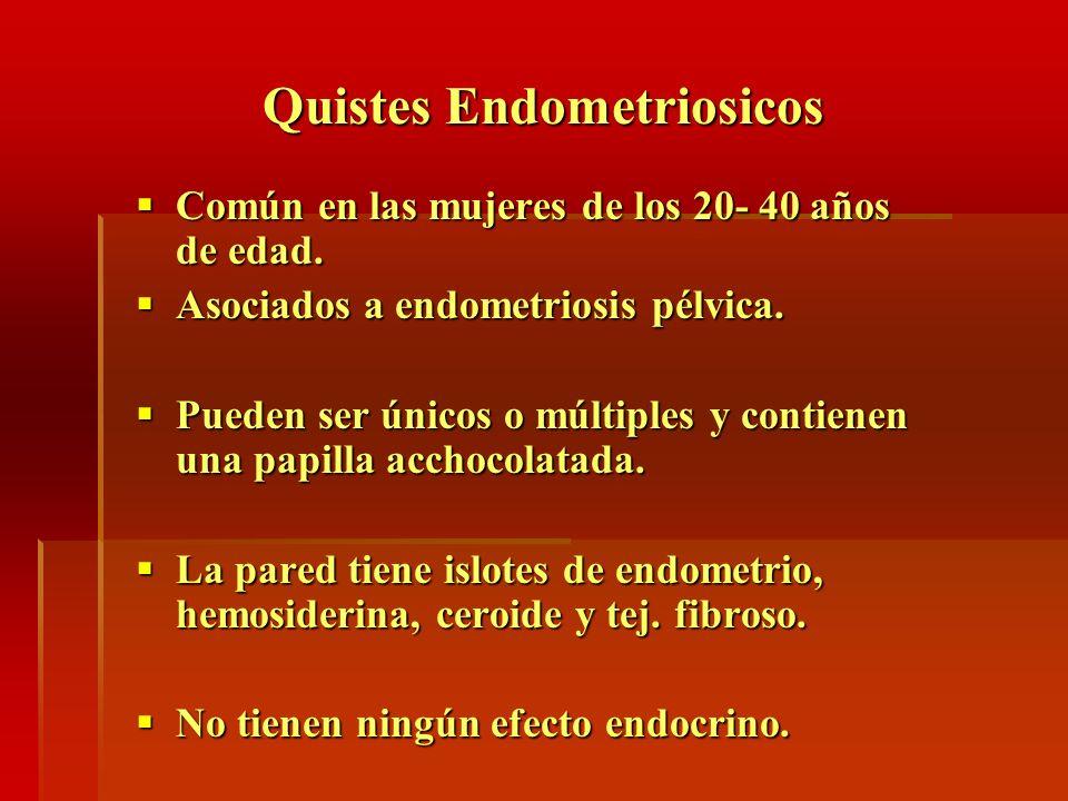 Quistes Endometriosicos
