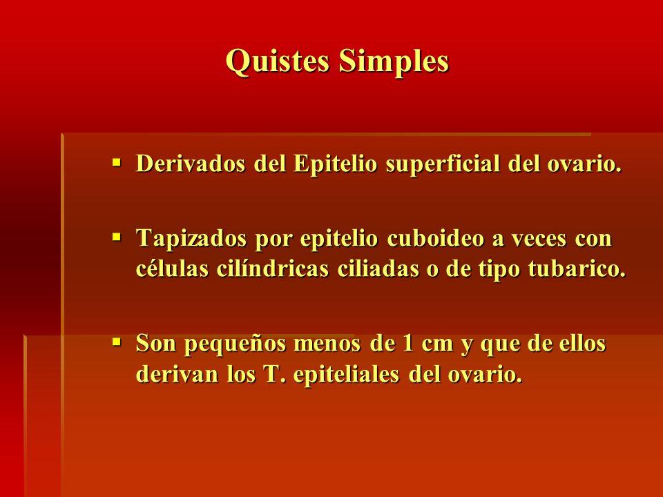Quistes Simples Derivados del Epitelio superficial del ovario.