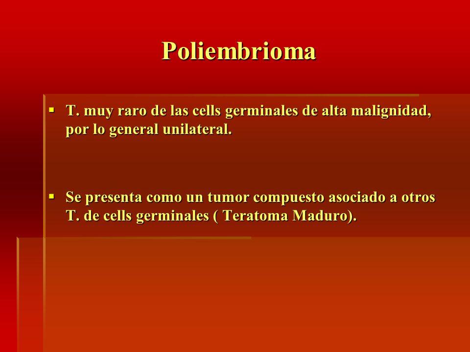 Poliembrioma T. muy raro de las cells germinales de alta malignidad, por lo general unilateral.