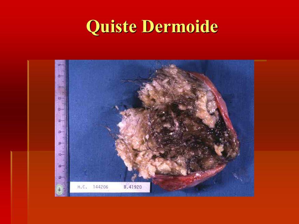 Quiste Dermoide