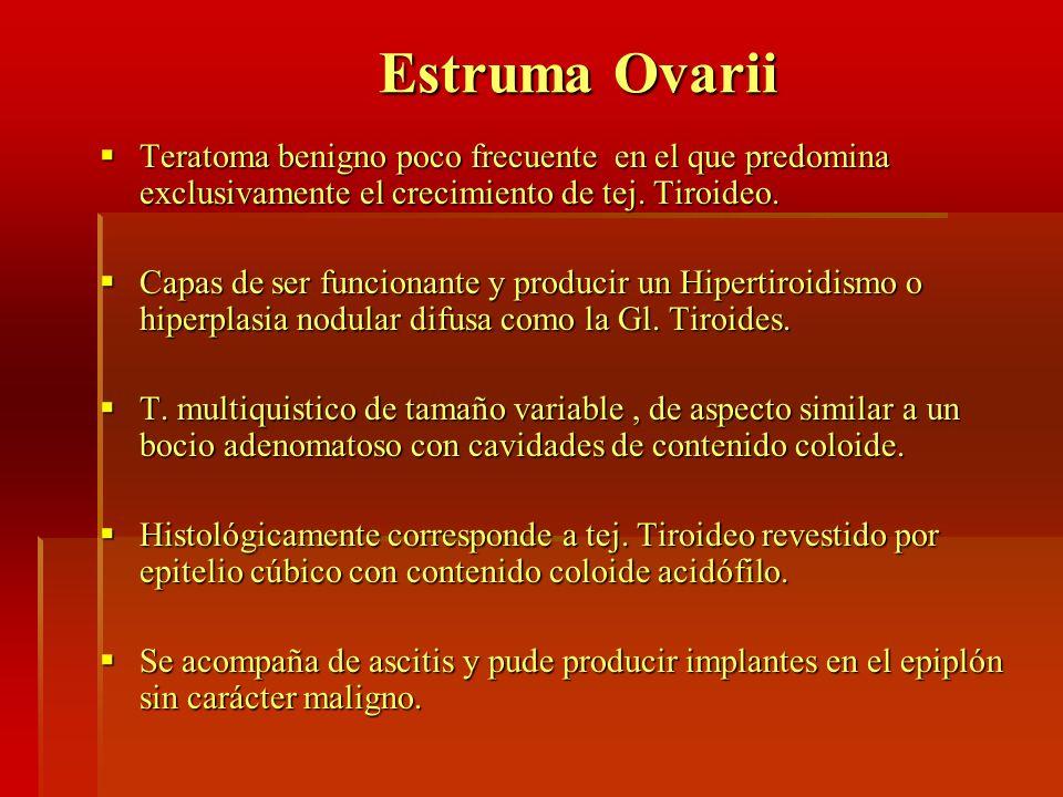 Estruma Ovarii Teratoma benigno poco frecuente en el que predomina exclusivamente el crecimiento de tej. Tiroideo.