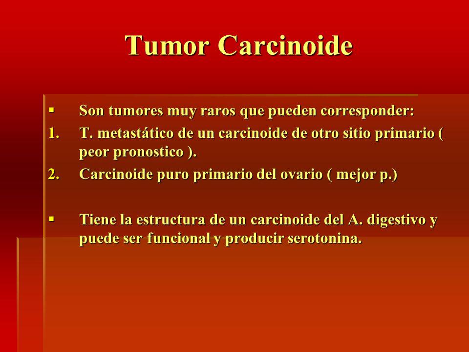 Tumor Carcinoide Son tumores muy raros que pueden corresponder: