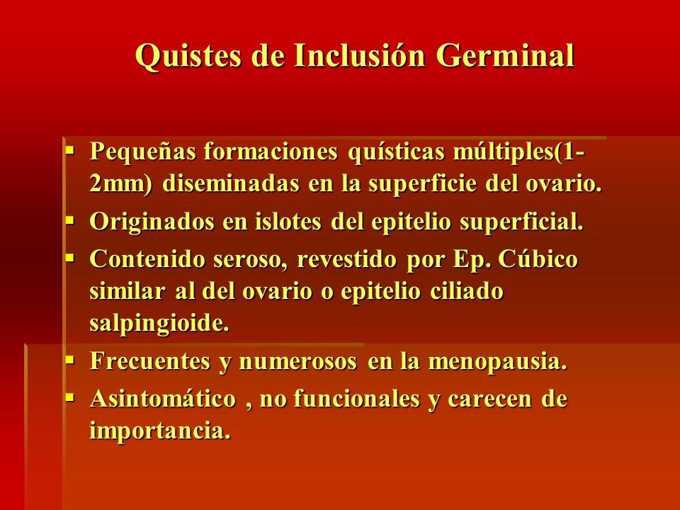Quistes de Inclusión Germinal