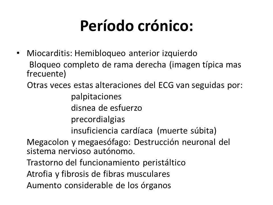 Período crónico: Miocarditis: Hemibloqueo anterior izquierdo