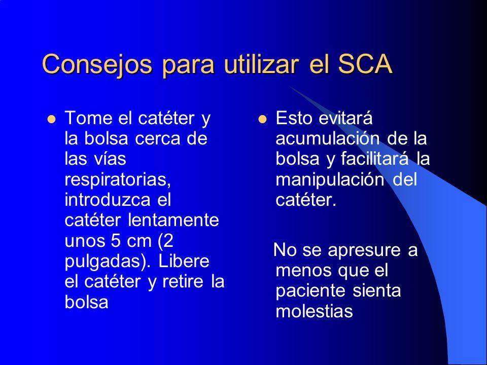 Consejos para utilizar el SCA