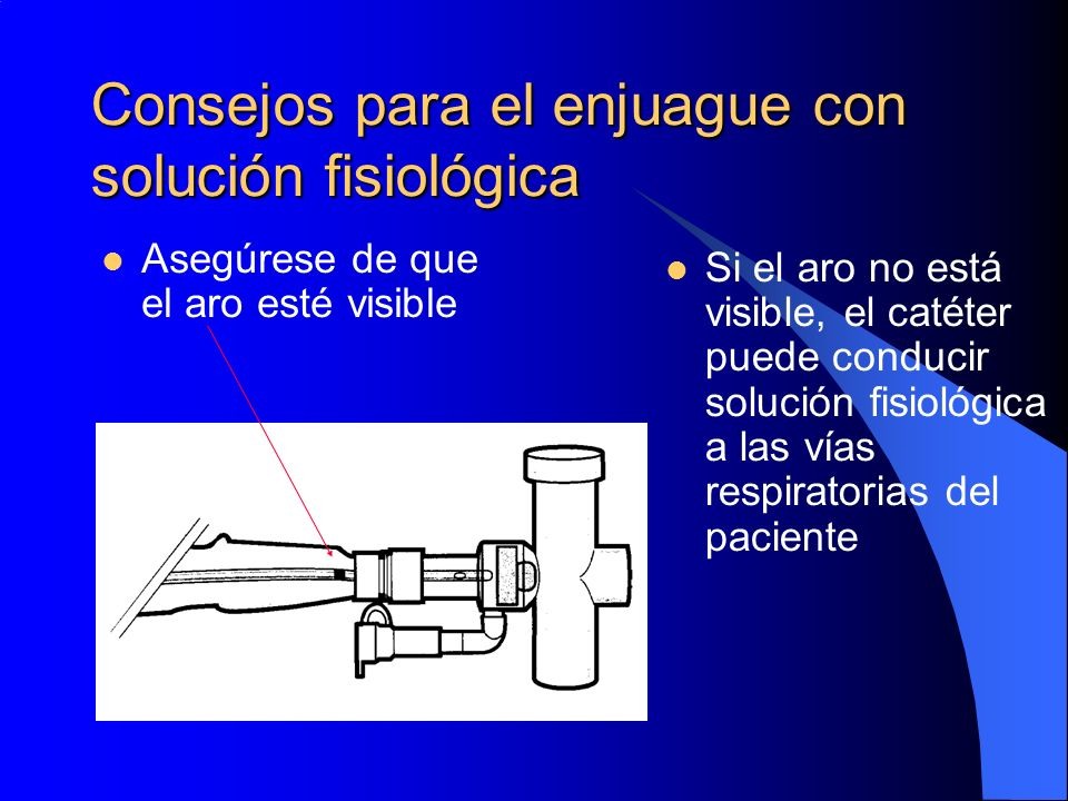 Consejos para el enjuague con solución fisiológica