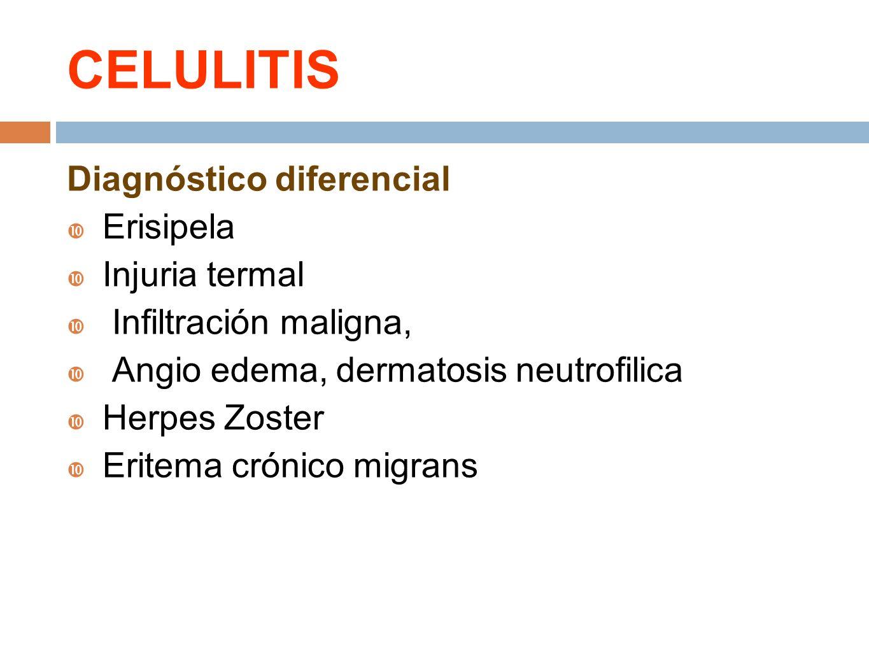 CELULITIS Diagnóstico diferencial Erisipela Injuria termal