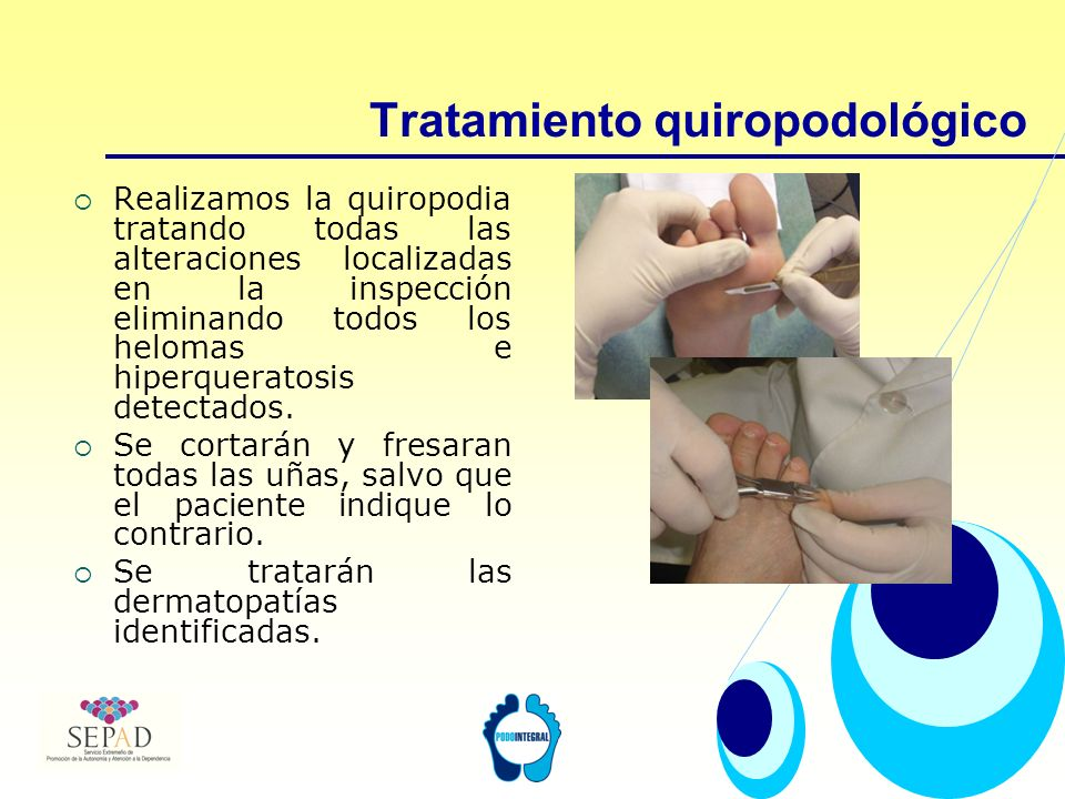 Tratamiento quiropodológico