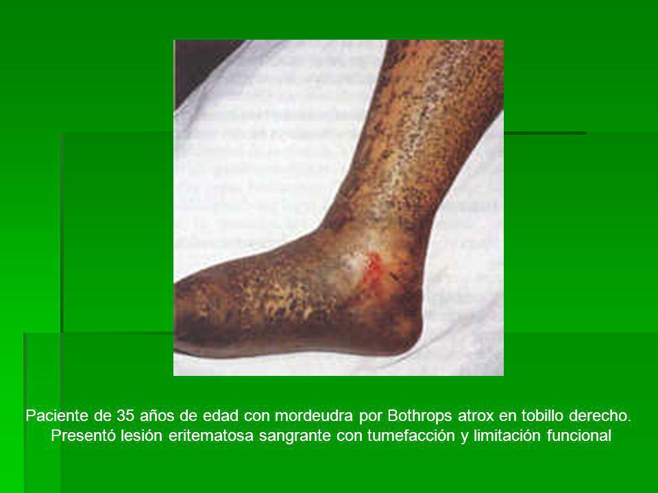 Paciente de 35 años de edad con mordeudra por Bothrops atrox en tobillo derecho.