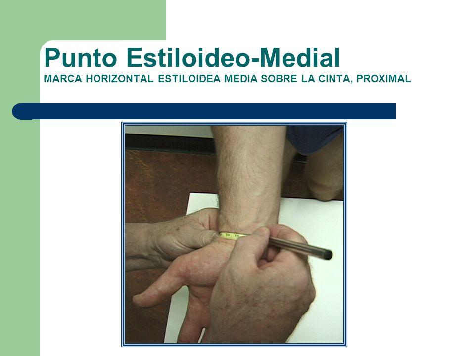 Punto Estiloideo-Medial MARCA HORIZONTAL ESTILOIDEA MEDIA SOBRE LA CINTA, PROXIMAL
