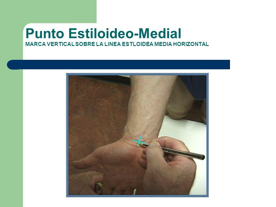 Punto Estiloideo-Medial MARCA VERTICAL SOBRE LA LINEA ESTLOIDEA MEDIA HORIZONTAL