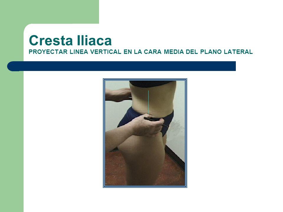 Cresta Iliaca PROYECTAR LINEA VERTICAL EN LA CARA MEDIA DEL PLANO LATERAL