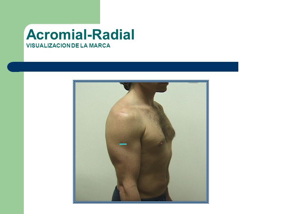 Acromial-Radial VISUALIZACION DE LA MARCA