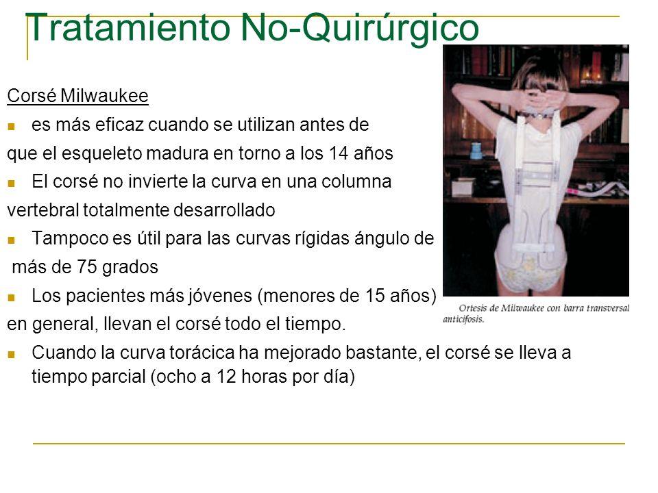 Tratamiento No-Quirúrgico