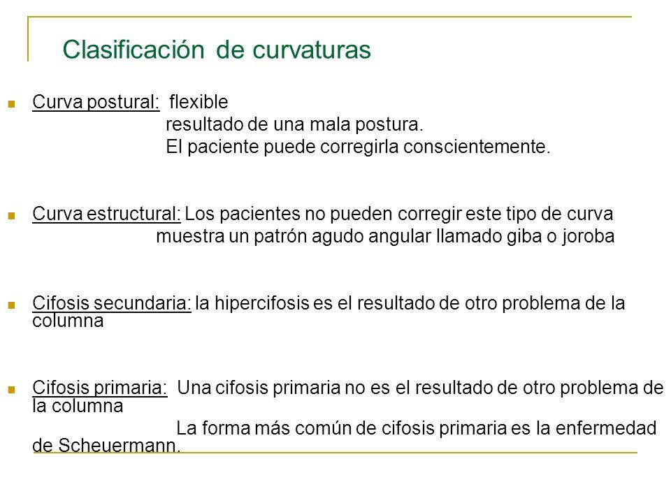 Clasificación de curvaturas
