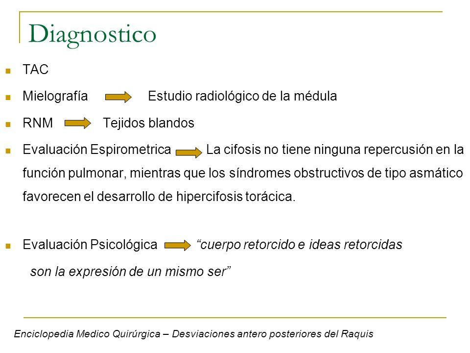 Diagnostico TAC Mielografía Estudio radiológico de la médula