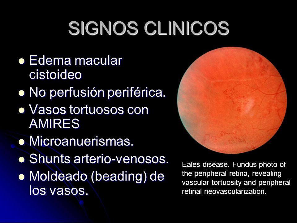 SIGNOS CLINICOS Edema macular cistoideo No perfusión periférica.