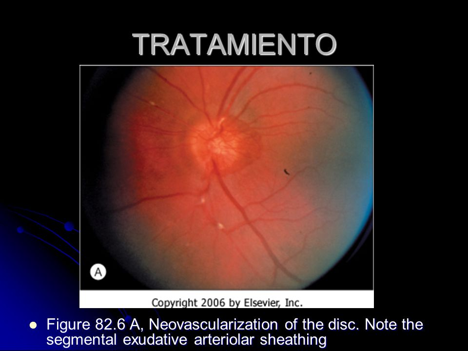 TRATAMIENTO Figure 82.6 A, Neovascularization of the disc.