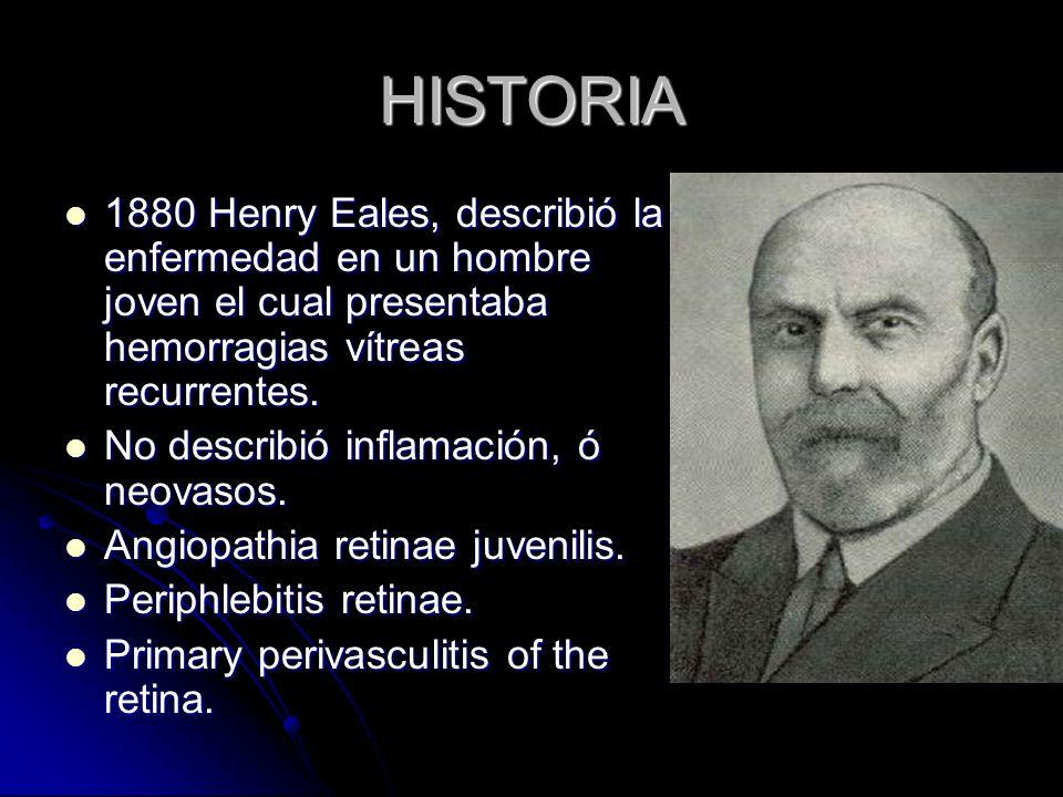 HISTORIA 1880 Henry Eales, describió la enfermedad en un hombre joven el cual presentaba hemorragias vítreas recurrentes.