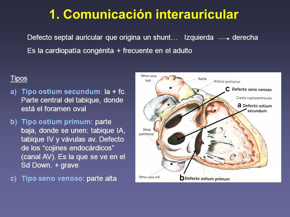 1. Comunicación interauricular