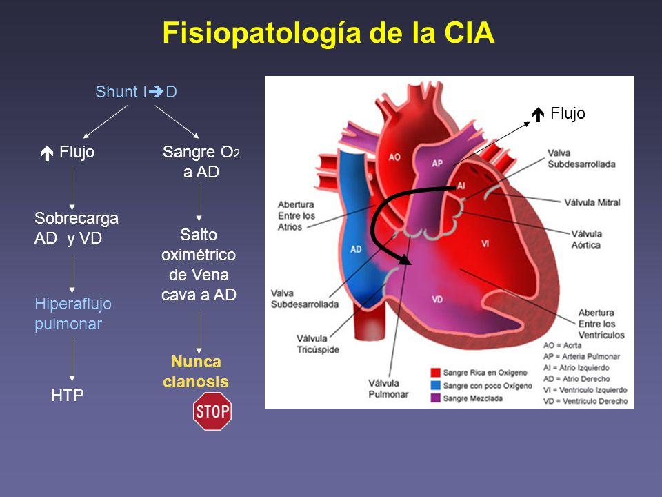 Fisiopatología de la CIA