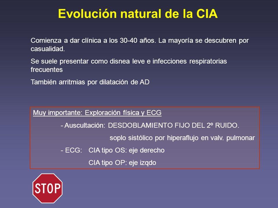 Evolución natural de la CIA