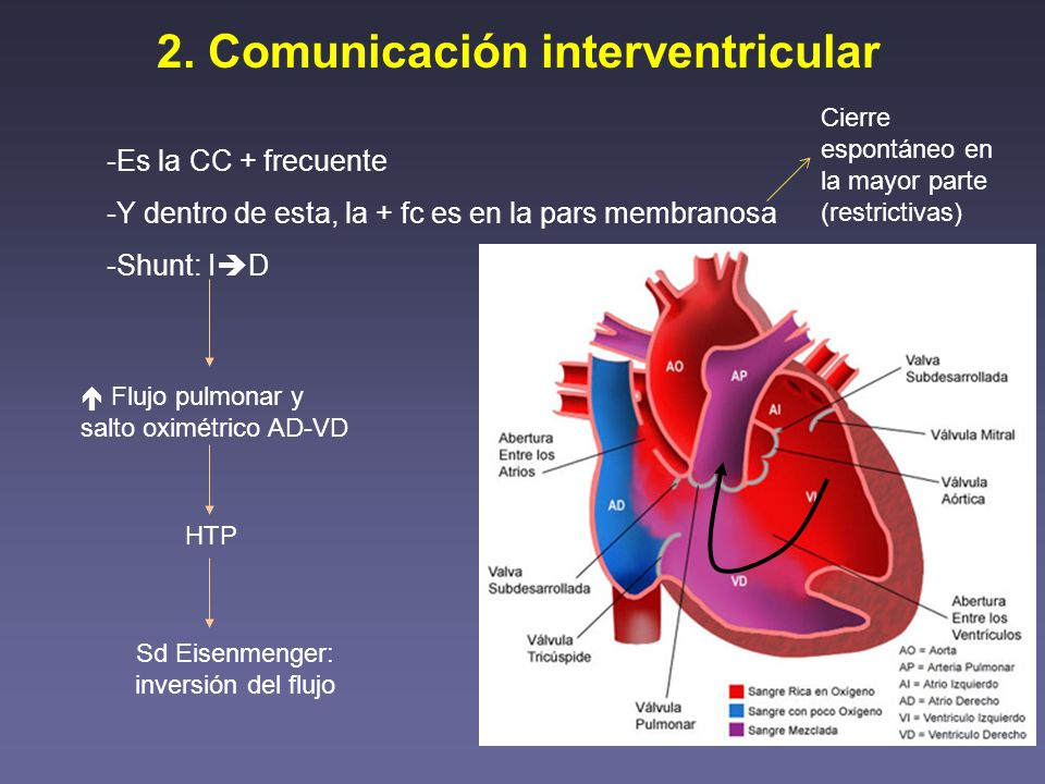 2. Comunicación interventricular