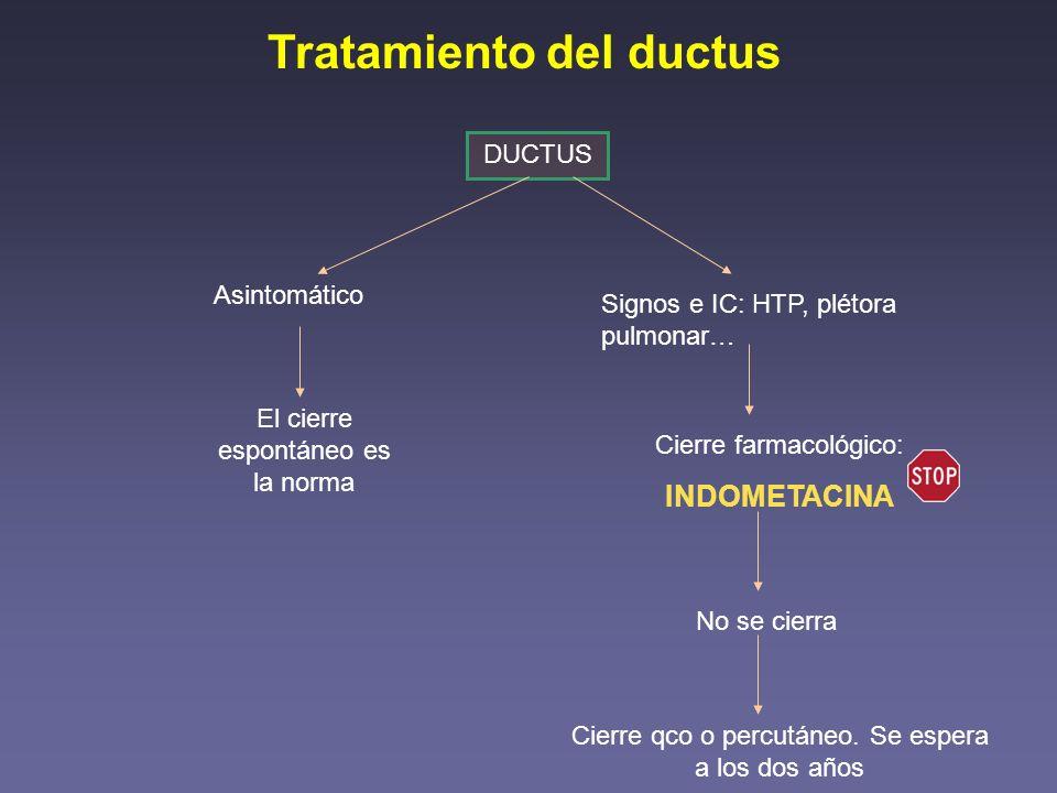 Tratamiento del ductus