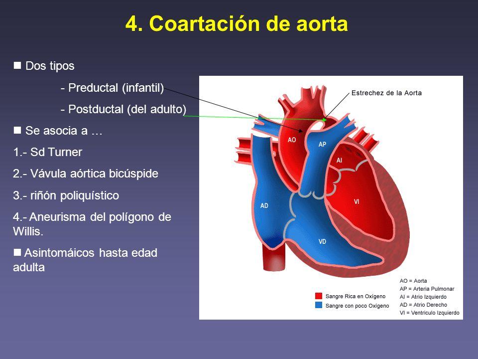4. Coartación de aorta Dos tipos - Preductal (infantil)